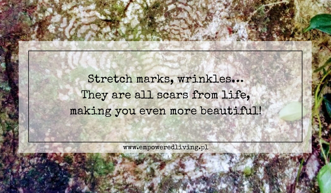 Stretch marks? YES, please!